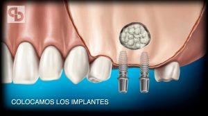 Técnica extracción quistes dentales. Denture cyst extraction technique