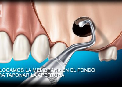 Técnica extracción quistes dentales. Denture cyst extraction technique
